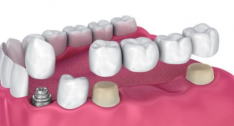 Dentalimplantsburnaby dentalcarehowtogetrid dental