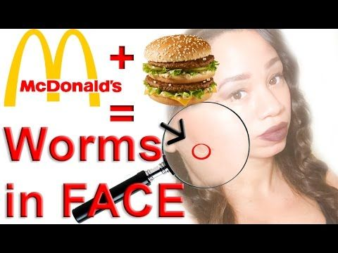 McDonald's Big Mac makes Worm Crawl out of Girl's Face – WARNING: Gross!
