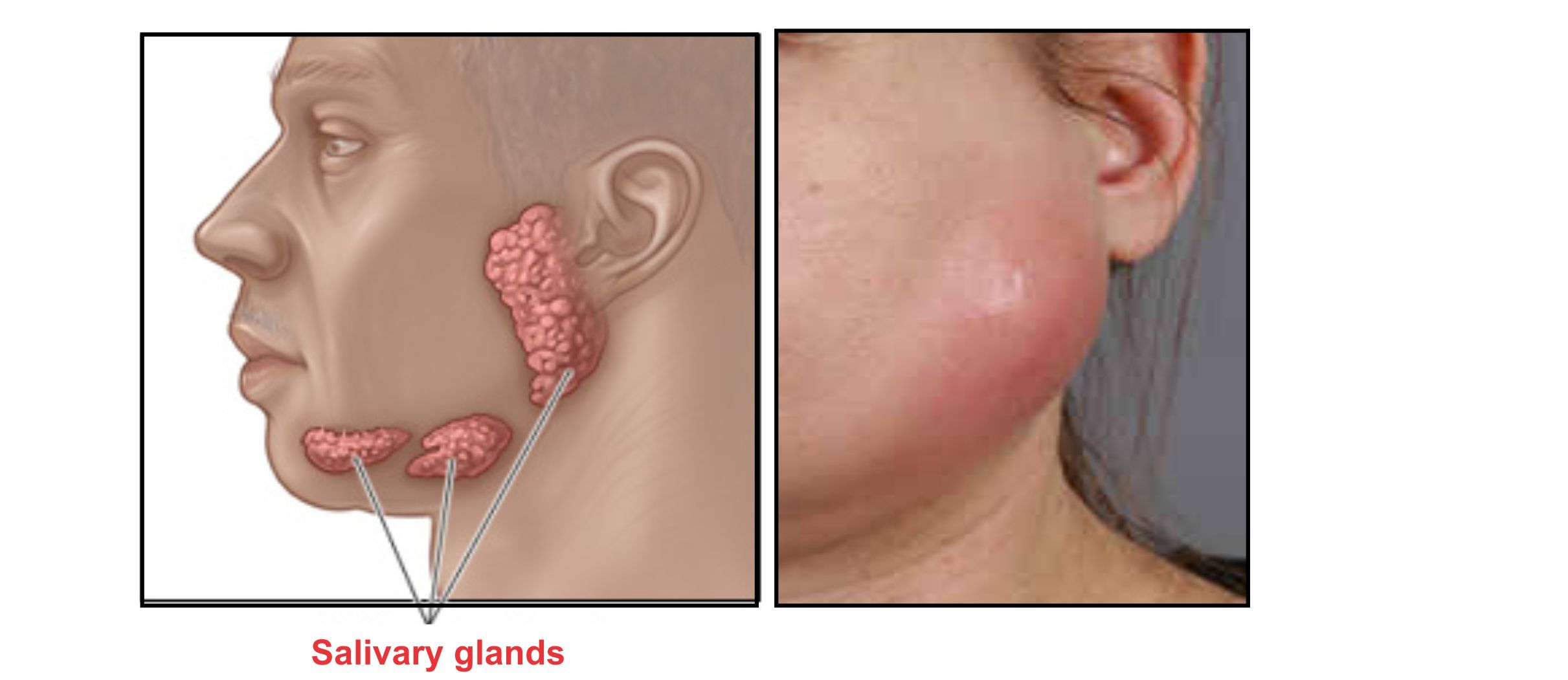 hight resolution of infected salivary glands can cause a lump under jaw or jaw line
