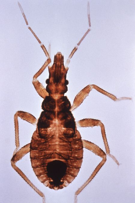 Picture Of Kissing Bug A Vector For Chagas Disease Kiss Bug