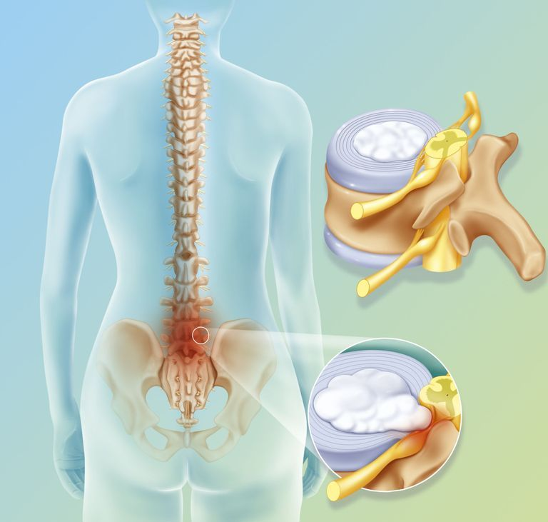 Illustration of a spinal disc herniation between L4/L5 (4th and 5th lumbar vertebrae) and L5/S1