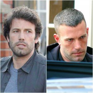 There Have Been Several Rumors About Ben Affleck Hair Transplant But If You Want To Know