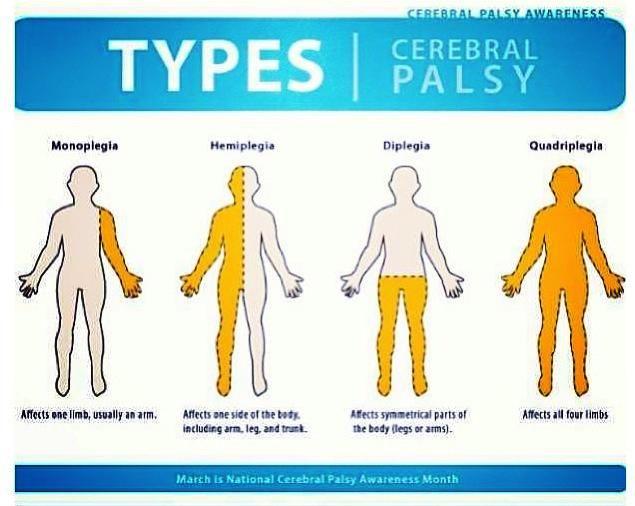 hypotonic cerebral palsy - Selo.l-ink.co