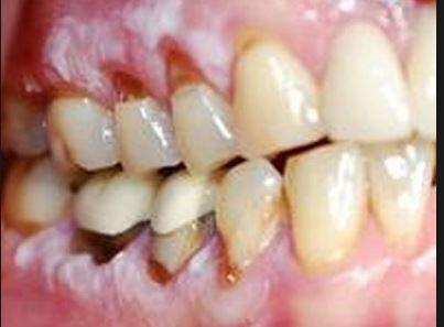 Receding Gums May Be A Symptom Of Oral Cancer Dental