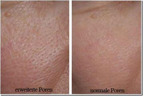3 masken f r feine poren besser gesund leben gesundheit pinterest poren gesundes leben. Black Bedroom Furniture Sets. Home Design Ideas