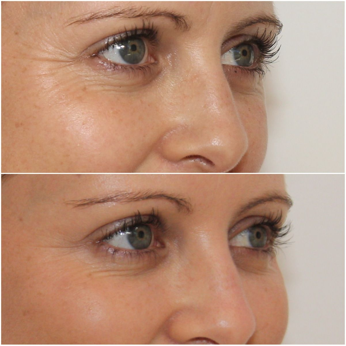 NONSURGICAL FACELIFT In nonsurgical face lift for instant glow on