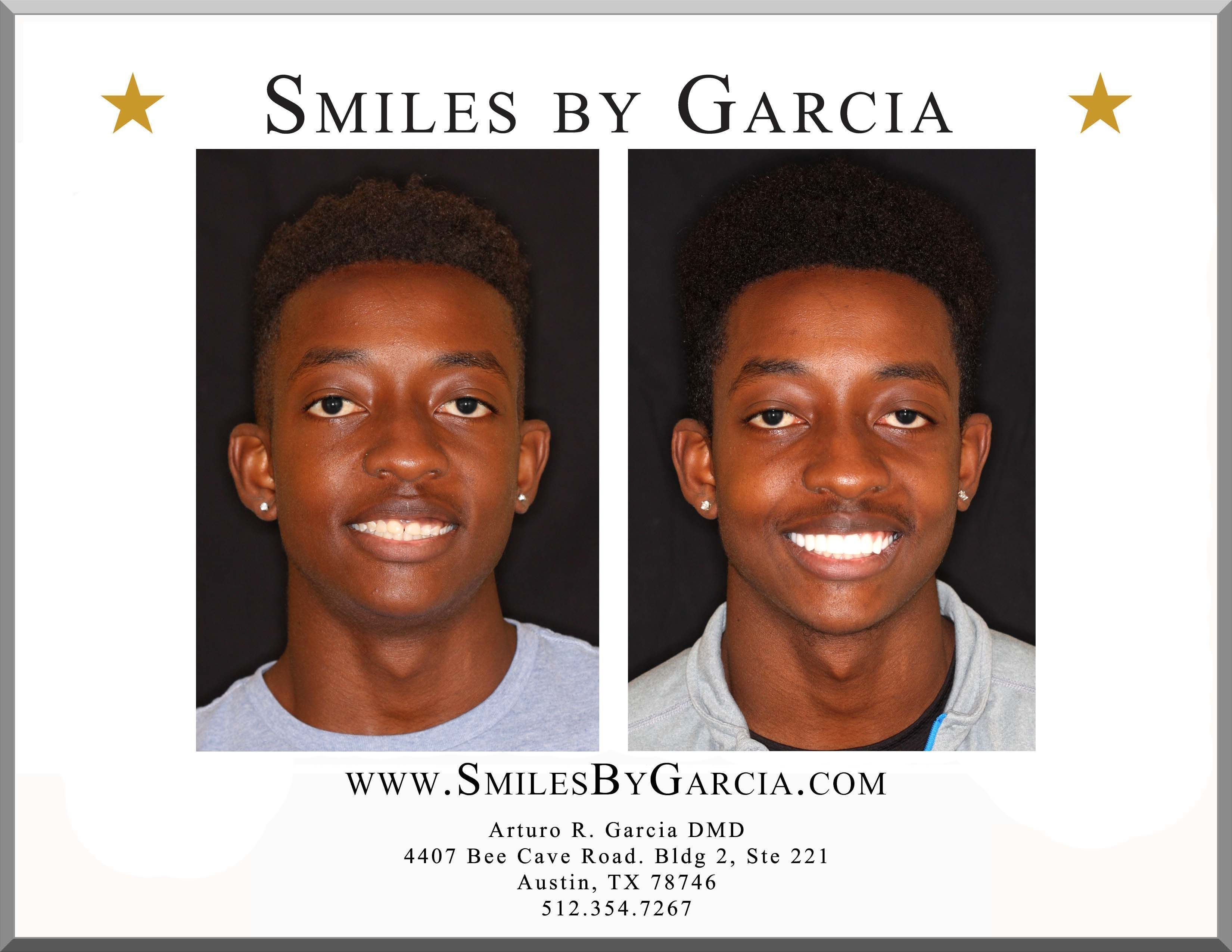 Smiles by garcia cosmetic dentistry is the best cosmetic dentist in