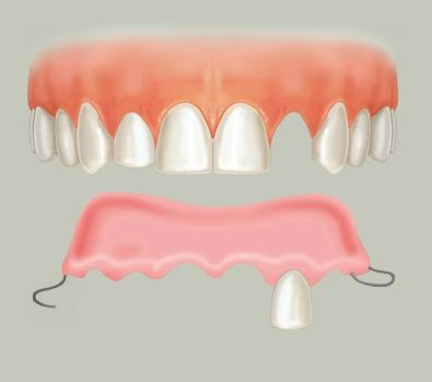 A denture is a removable replacement for missing teeth and