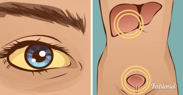 fe831a4bd90960 Кажуть, що очі — це дзеркало душі. Ні для кого не секрет, що очі  відображають ваші емоції і внутрішн.