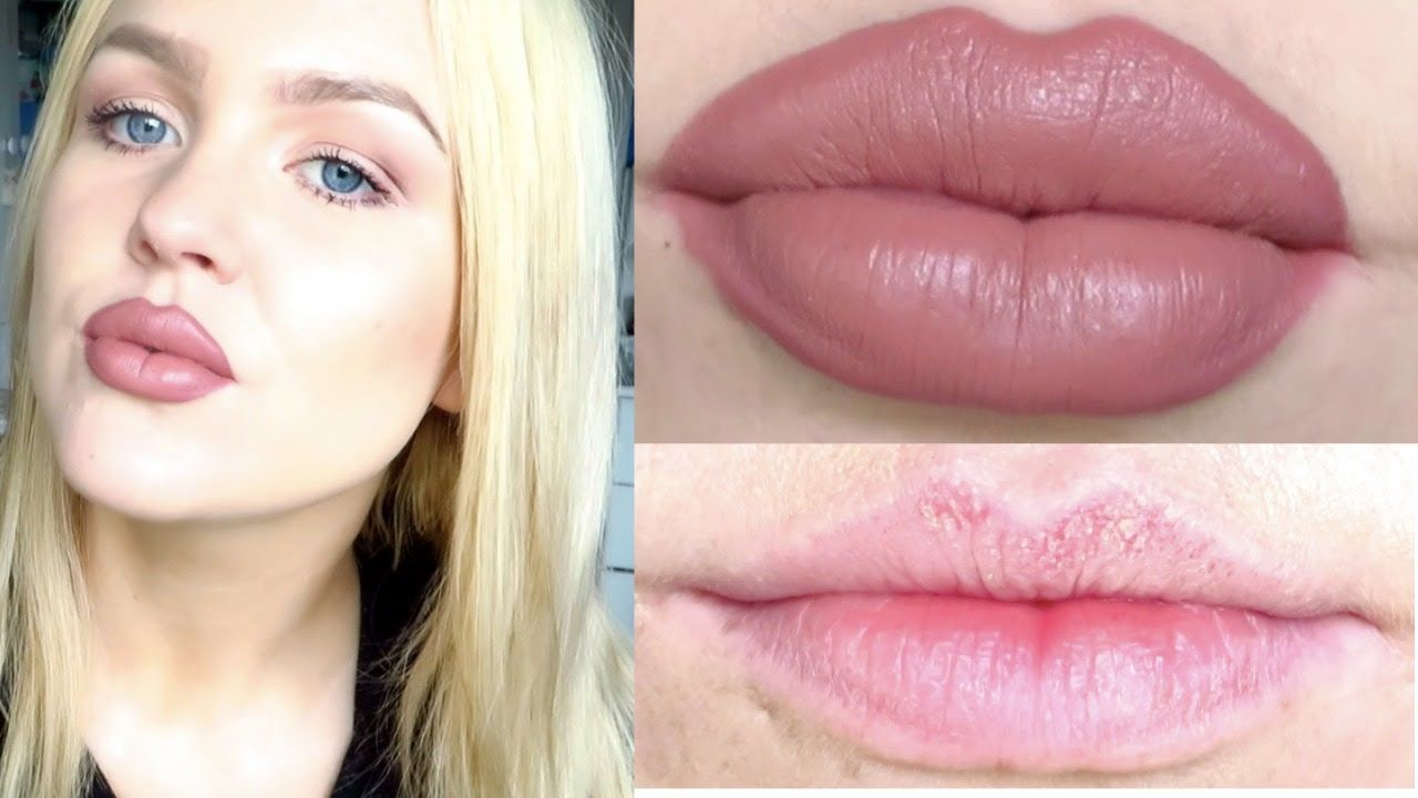How To Get Big  Kylie Jenner Lips Without Surgery   I-5955