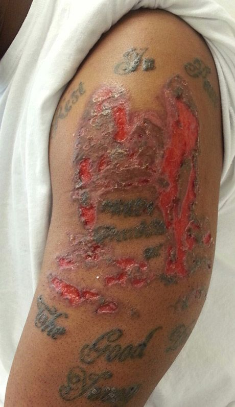 Crutchfield Dermatology April 2014 Case Of The Month Allergic Reaction To Tattoo Tattoo Care Tattoo Ink Allergy