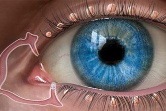 Drawing of lacrimal glands with punctal plug. Image: Oasis Medical, Inc.