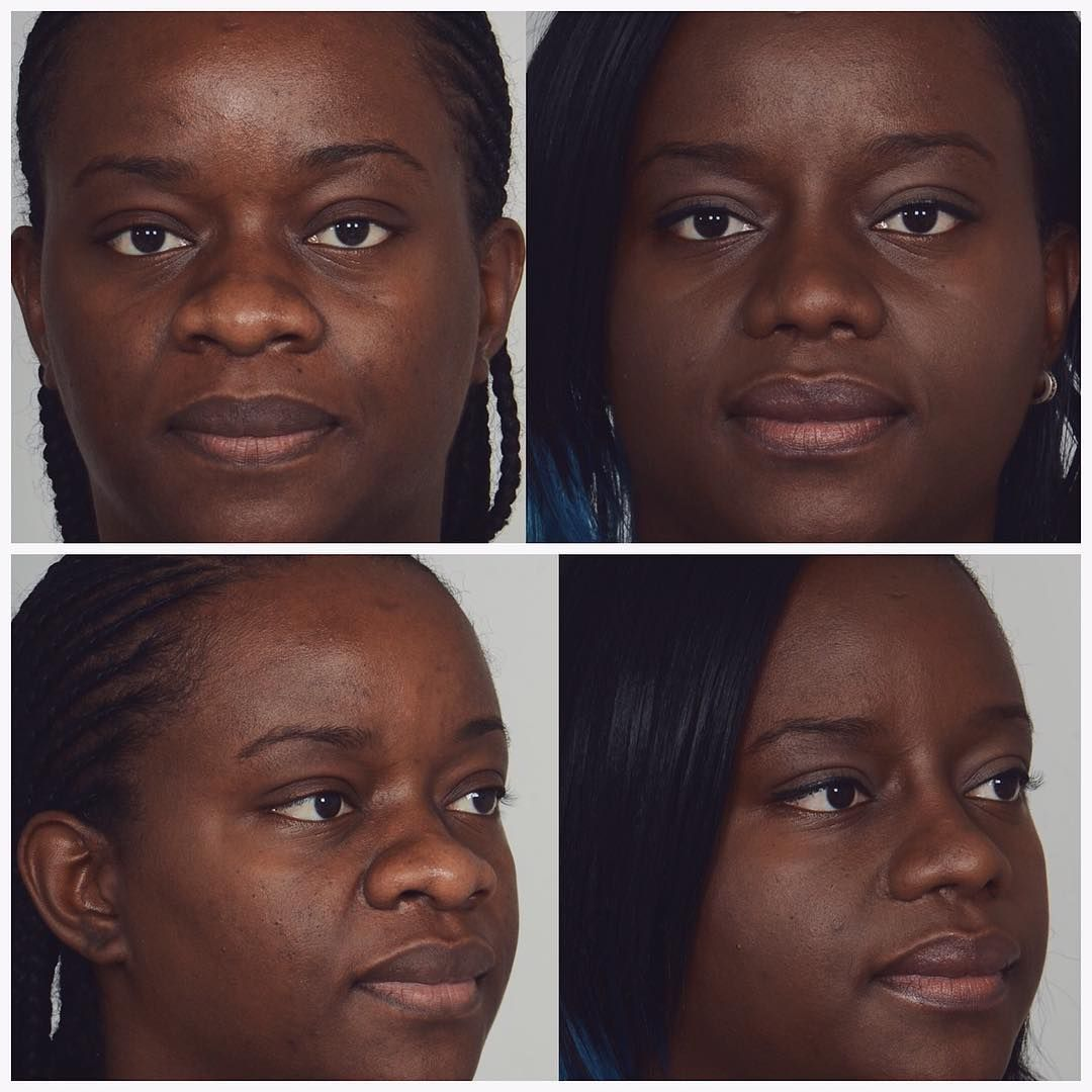 Before after rhinoplastysurgery which included