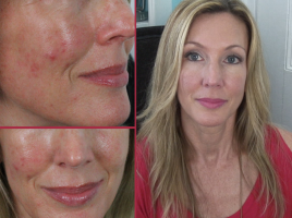 Anti Aging Skin Care Archives Hotandflashy50 Com Anti Aging Skincare Routine Anti Aging Skin Care Dry Skin Body