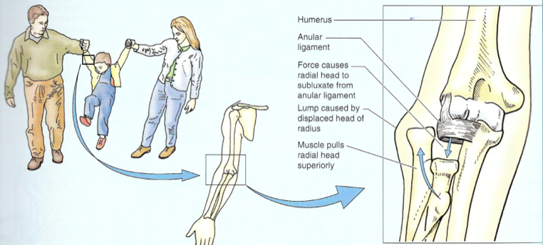radial head subluxation (closed reduction, forearm ...