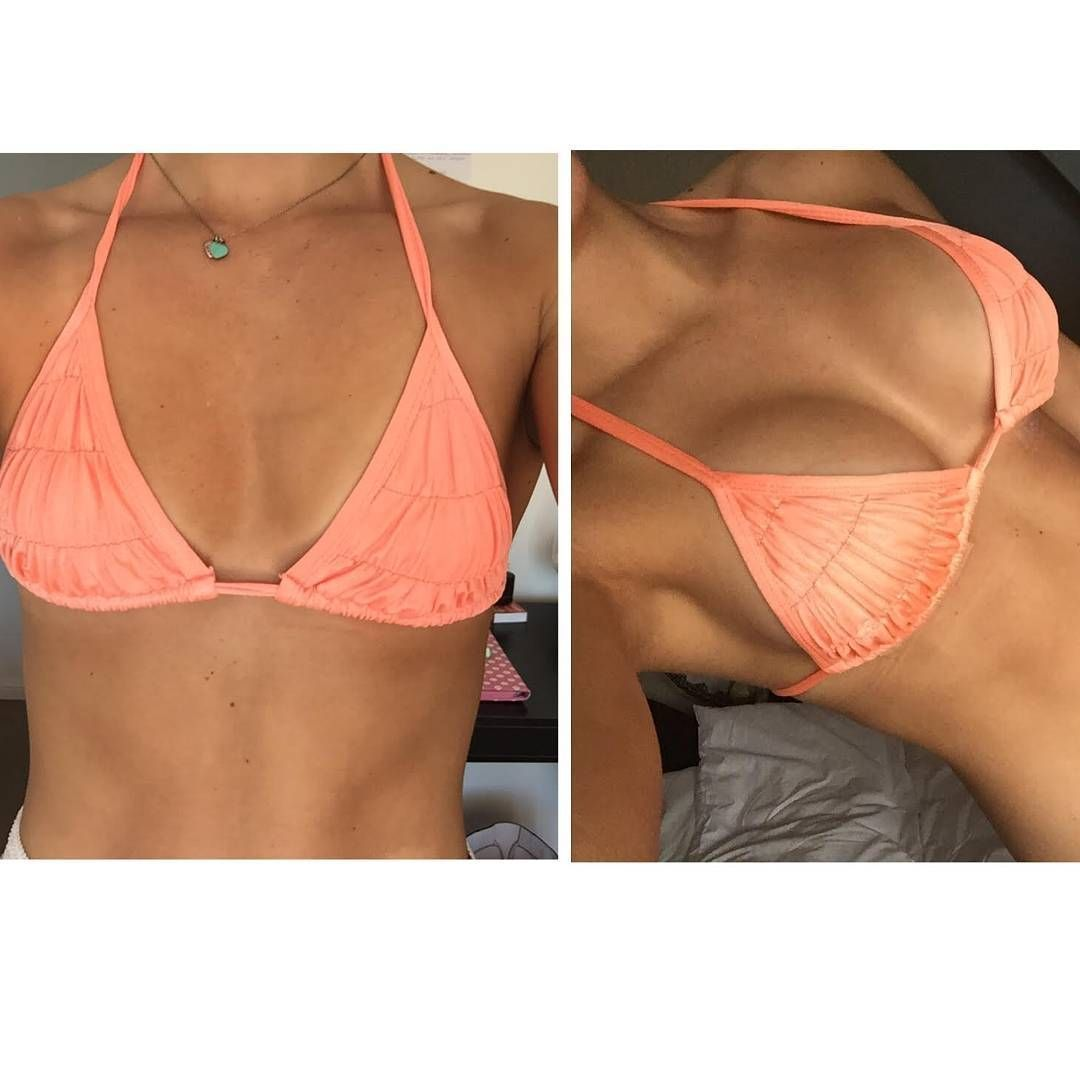 Gorgeous bikini babe before and after This look was completed with 335cc Round Implants with our Plastic Surgeons on the Gold Coast GOLD COAST AND SYDNEY 4990 SURGERY DAT...