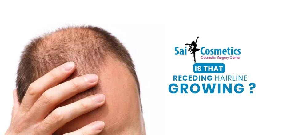 Best Solutions for Receding Hairline by Sai Cosmetics