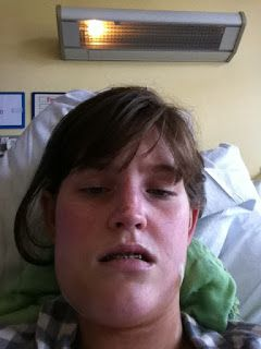 Orthognathic surgery recovery blog swelling pain jaw surgery ...
