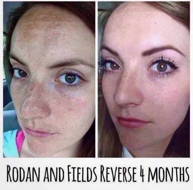 before and after picture of 4 months using the rodanfields reverse regimen wow what an incredible difference with a 60 day empty bottle