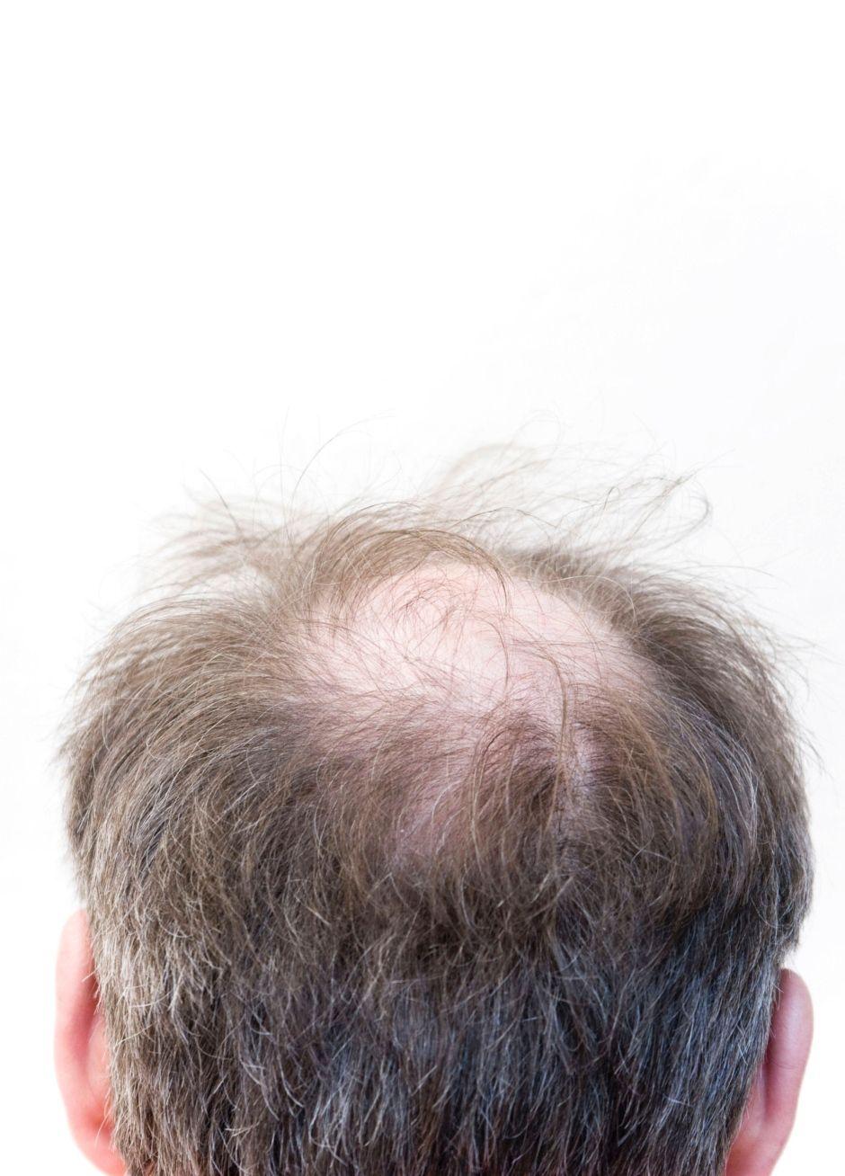 e0e9957493d Haarausfall ist kein Schicksal mehr