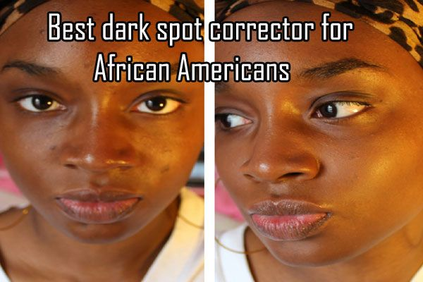 Best Dark Spot Corrector For African Americans Dark Spot Correctors Best Dark Spot Corrector Black Skin Care American Skin