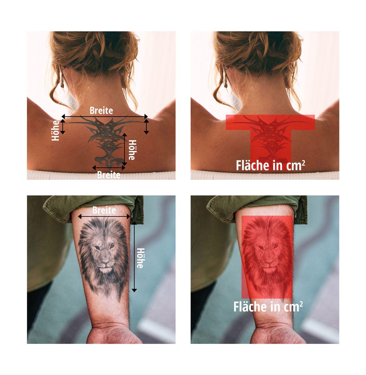 Tattoo Entfernung Köln