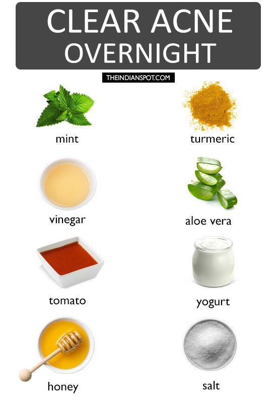 Natural Overnight Acne Treatment