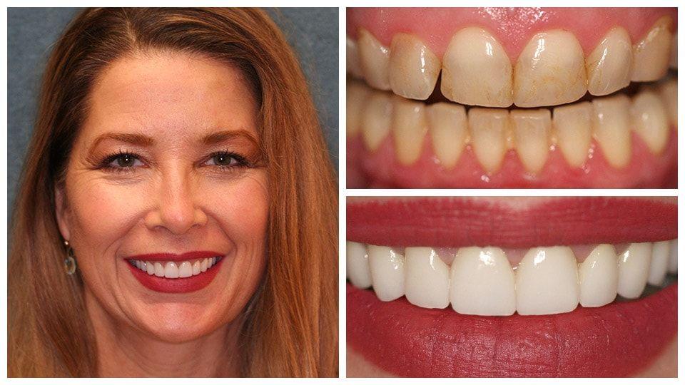 Dentist in Tampa, FL Tampa Dental Clinic Dentist Near