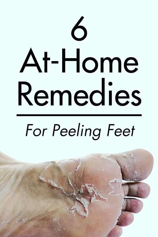 foot skin peeling treatment