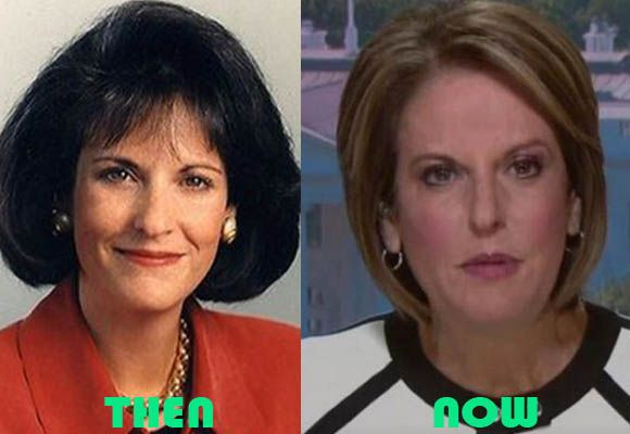 Gloria Borger Plastic Surgery Before and After Facelift | Plastic surgery,  Facelift, Gloria