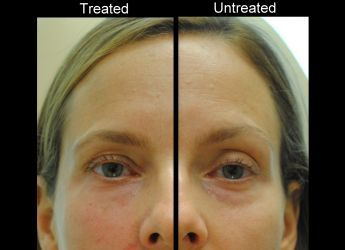 One syringe of Juvederm Ultra XC into right cheek, and right