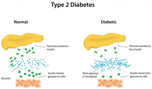 What Is The Difference Between Type 1 And Type 2 Diabetes Type 1 Diabetes Diabetes Causes Of Diabetes