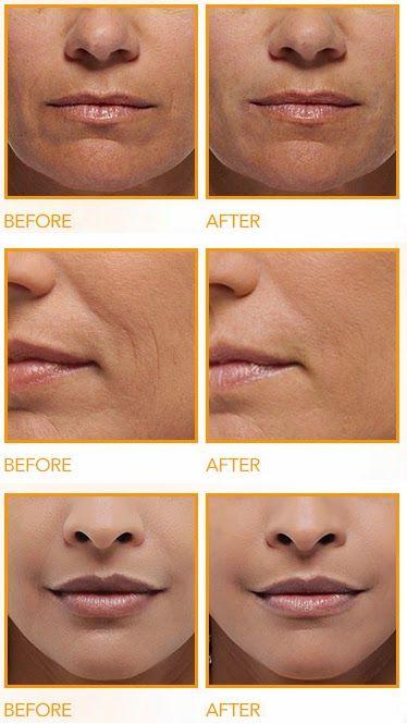 How To Get Rid Of Deep Wrinkles On Upper Lip