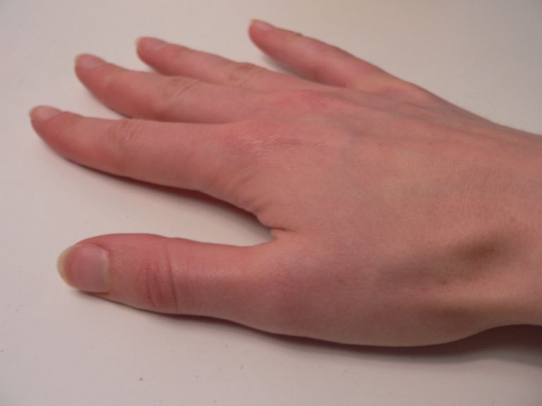 0371be0608d56d5206cfeb6b15c6ac6e - How To Get Rid Of Scabies In 24 Hours