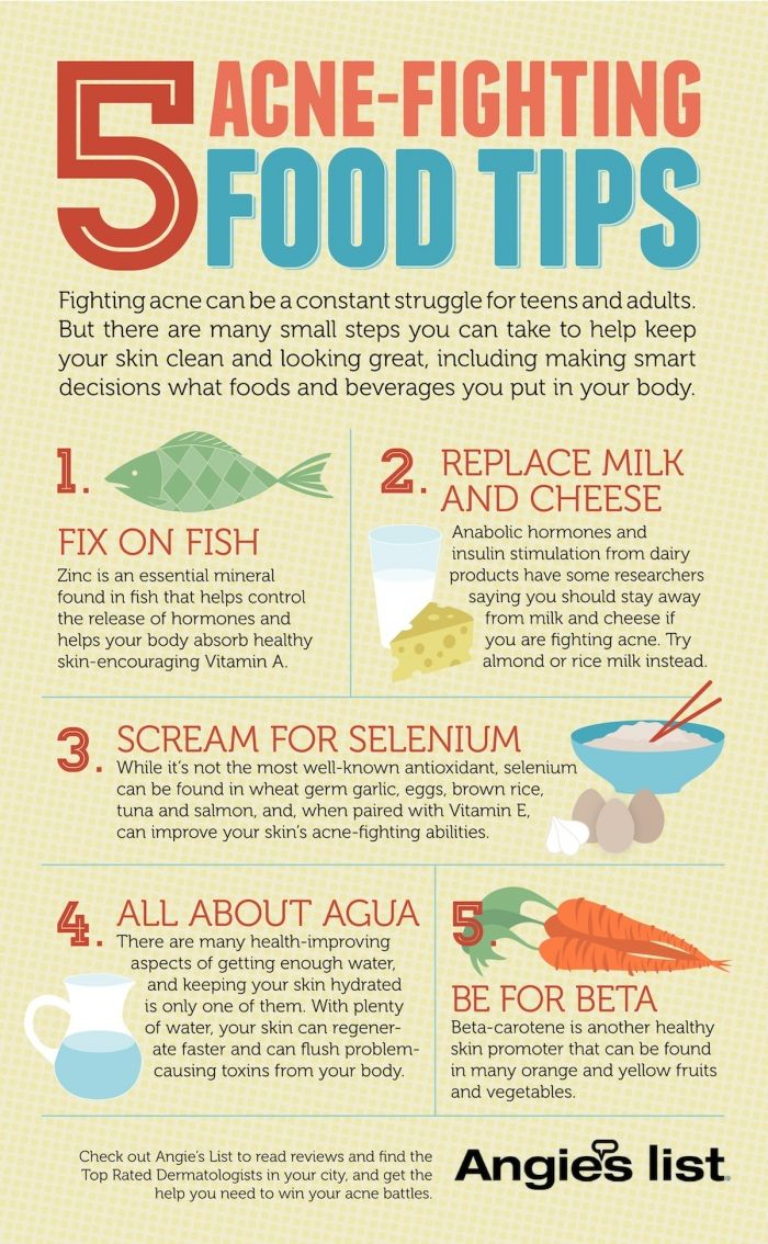 5 Acne -fighting foods Infographic.