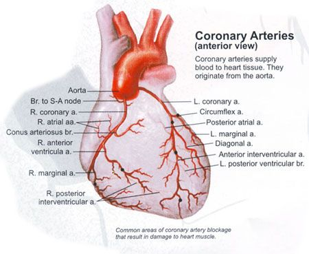 picture of left main and proximal left anterior descending coronary ...