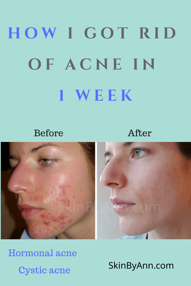 It S Amazing How This Simple Skincare Works I Cleared My Acne Prone Skin Hormonal Cystic Acne Withi Cystic Acne Treatment Cystic Acne How To Get Rid Of Acne