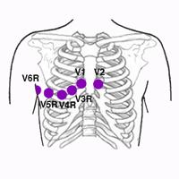 Electrodos De Derivaciones Derechas Electrocardiograma Electrodo Derivacion