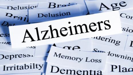 Картинки по запросу Alzheimer's Symptoms