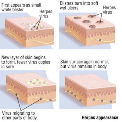 Healing herpes