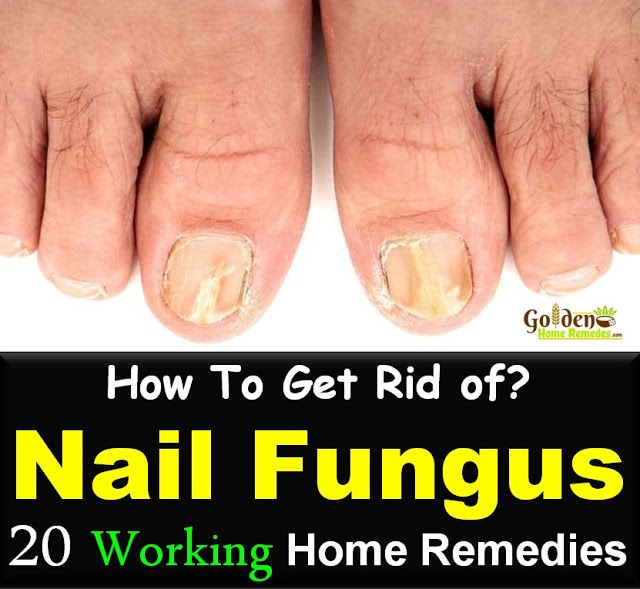 Nail Fungus: 20 Simple Home Remedies To Get Rid Of Nail Fungus Fast ...