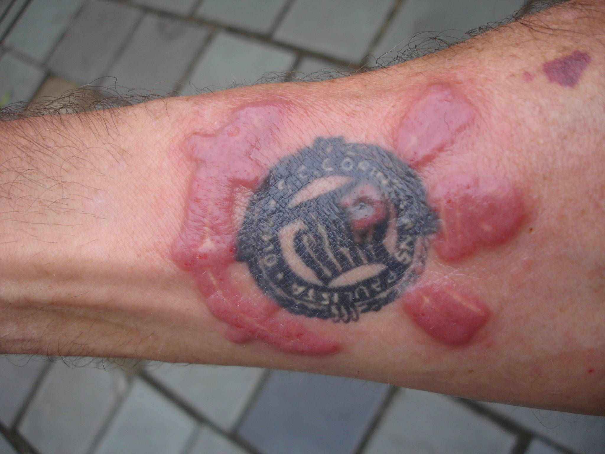 Red Ink Reaction What Is Henna Google Search Tattoo Ink Allergy Allergic Reaction To Tattoo Ink Tattoo
