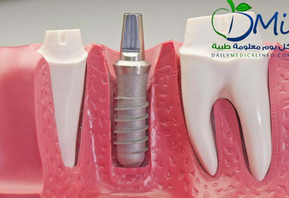 زراعة الأسنان مميزاتها و أهم أنواعها و عيوبها 歯科 歯 インプラント