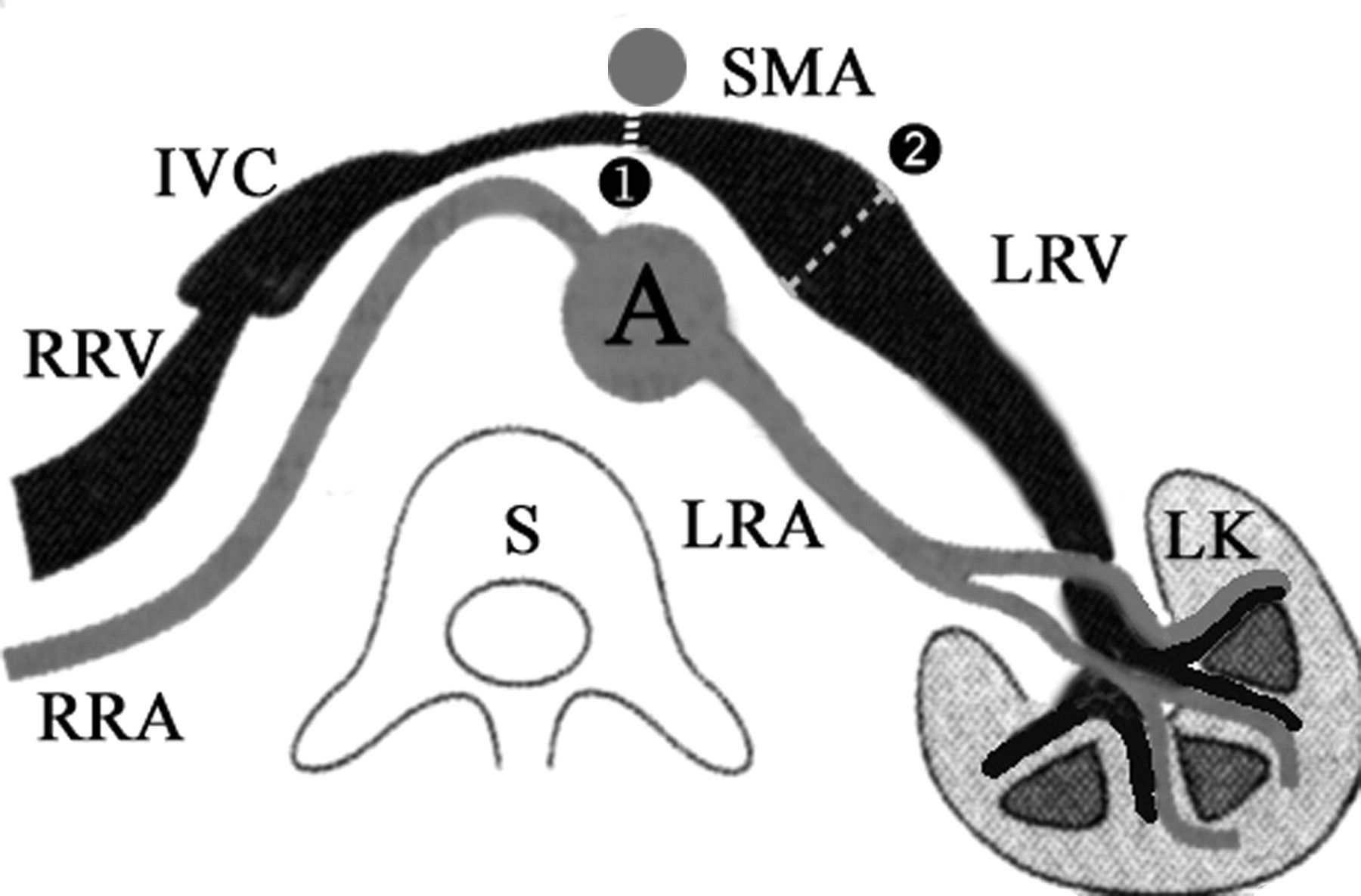 left renal vein passes anterior to the aorta, posterior to the SMA ...