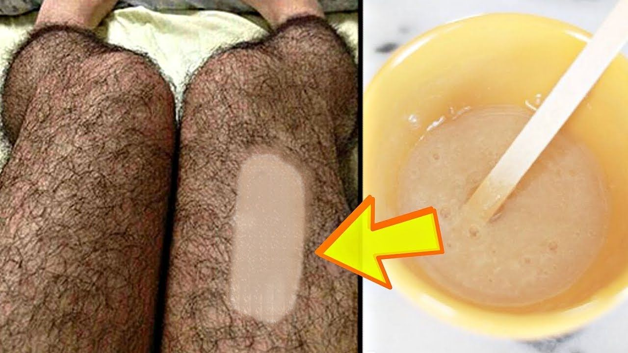 03a5013d762b82e52725e15bf0f6a86e - How To Get Rid Of Unwanted Hair Forever Naturally