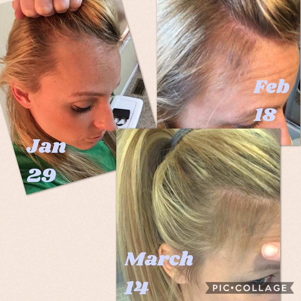 Monat grows back hair monat