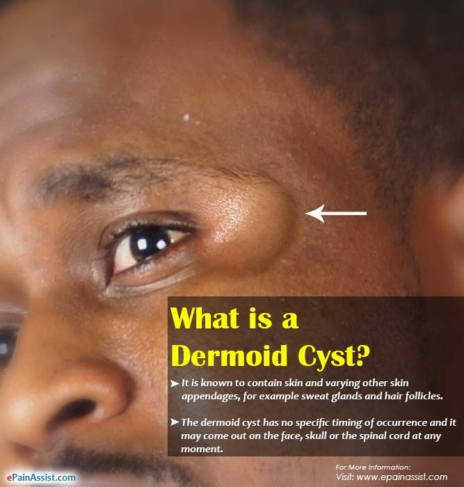 What Causes a Dermoid Cyst (With images)   Dermoid cyst ...