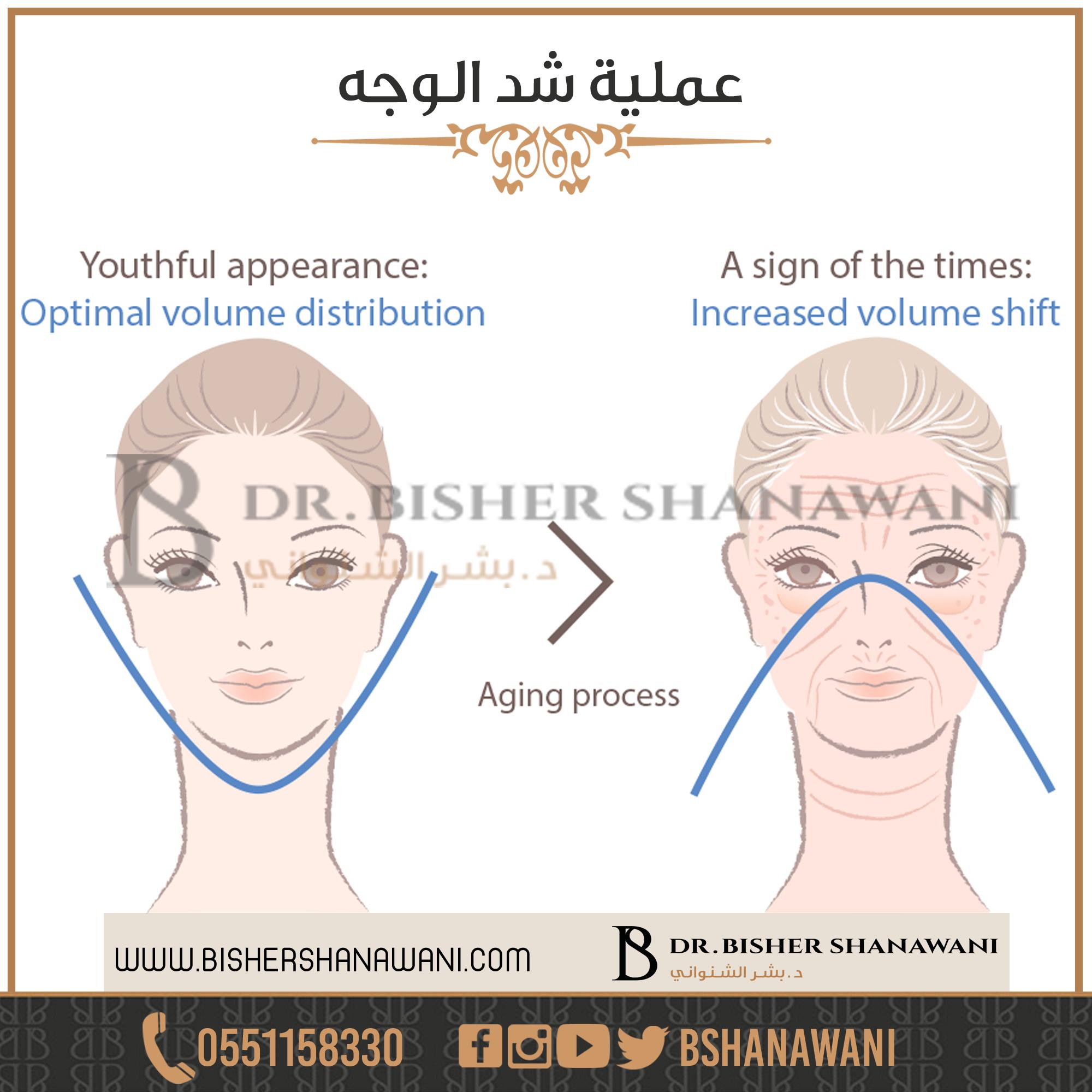 Bshanawaniعملية شد الوجه المعروفة علميا باسم Face Lift أو عملية Rhytidectomy هي عملية يتم فيها التخلص من تجاعيد الوجه وش Plastic Surgery Neck Lift Surgery