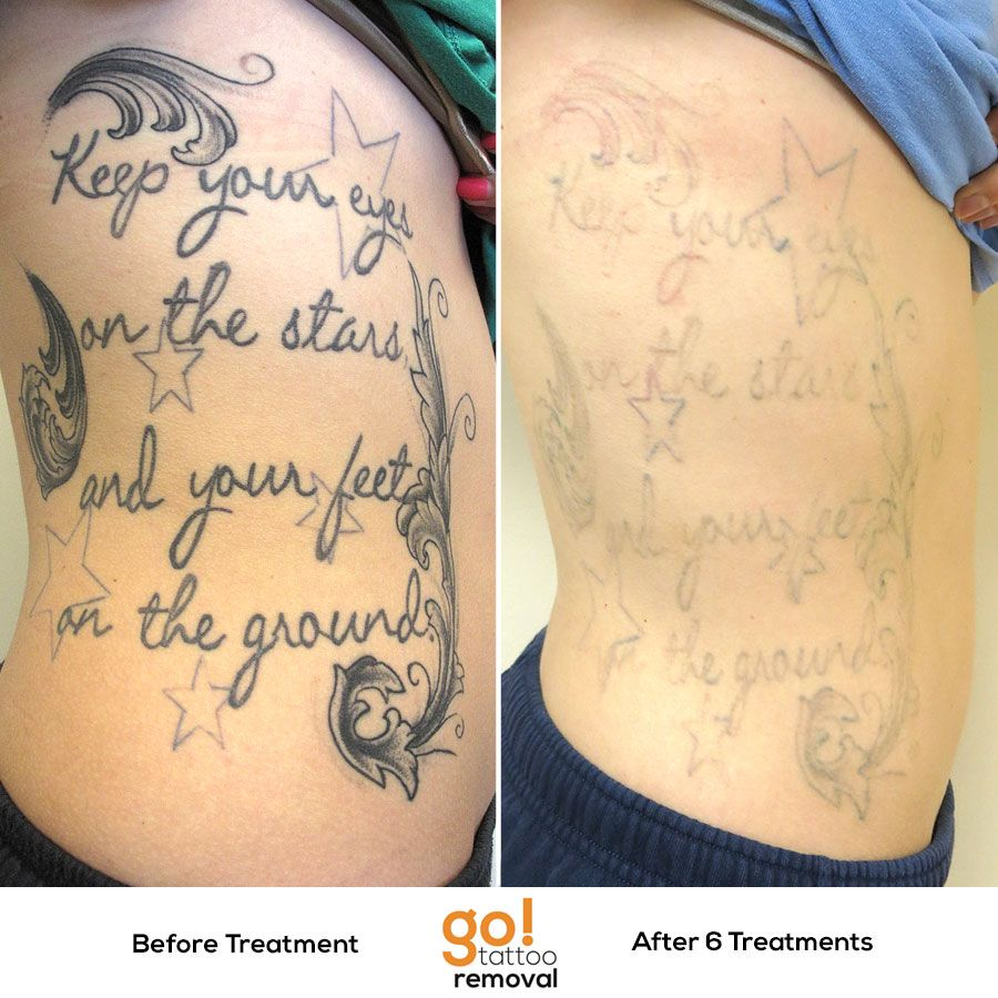 Tattoo Removal Quotes: This Tattoo Is Made Up Of Several Different Attempts To