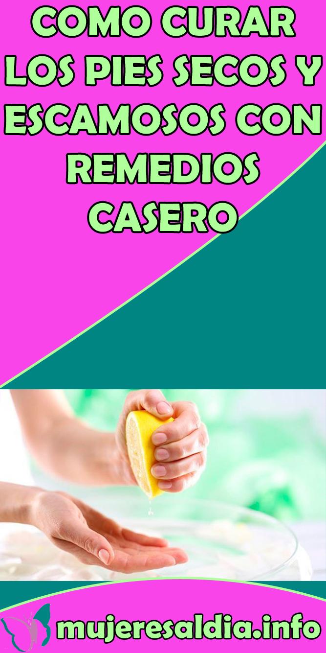 Como Curar Los Pies Secos Y Escamosos Con Remedios Casero Nature Food Banana